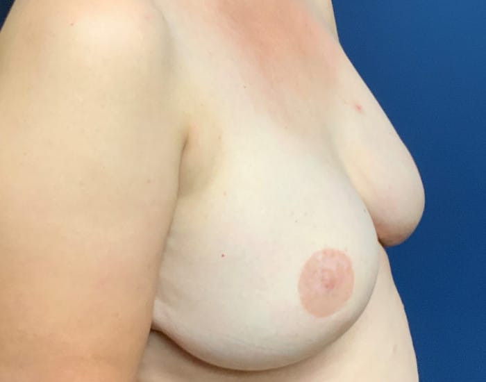 Nipple Sparring Full Thickness Skin Grafts